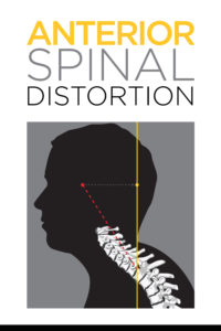 Picture of anterior spinal distortion and abnormal posture