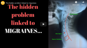 Learn what causes migraines...