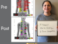 SEMG Analysis, core problems in the nervous system and spine