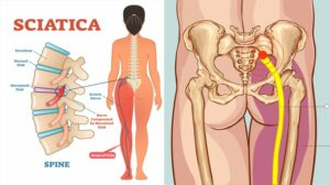 sciatica starts in the back and travels down the leg