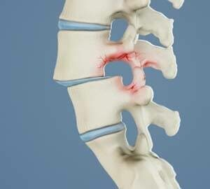 chiropractor Greenwood Village describes spondylolisthesis and what to do for sciatica pain relief